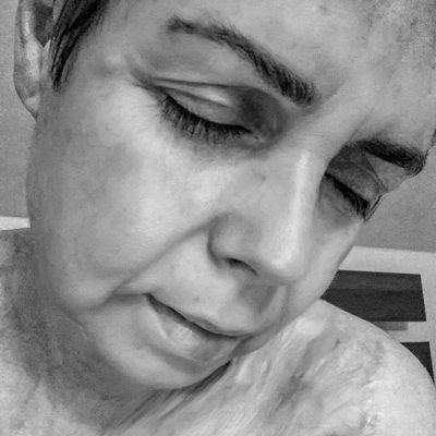 kobieta z bliznami, kobieta po poparzeniu, przeszczep skóry